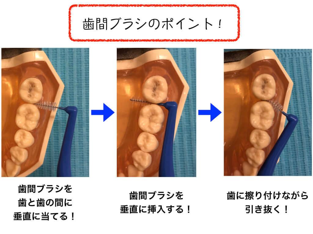 歯間ブラシのポイント