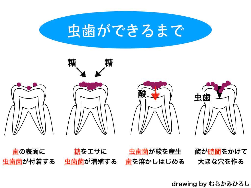 虫歯ができる課程図解