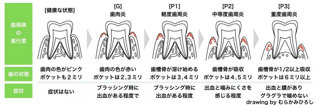 歯周病の進行図表