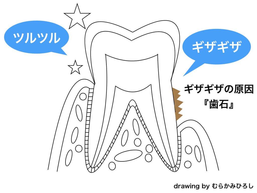 歯と歯石テキスト