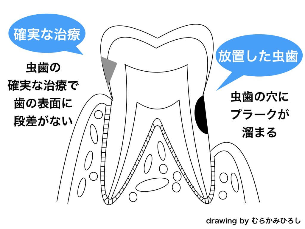 治療後に放置した歯のテキスト