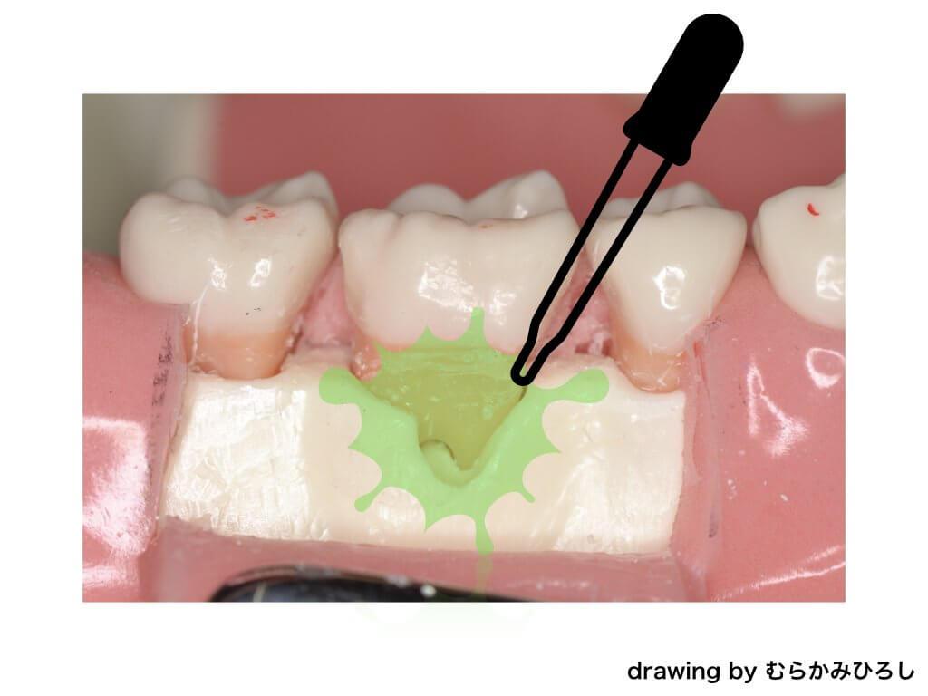 歯周病の模型