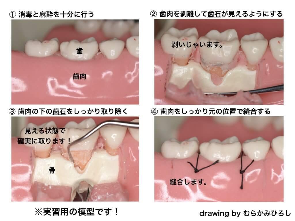 歯周外科手術の手順模型