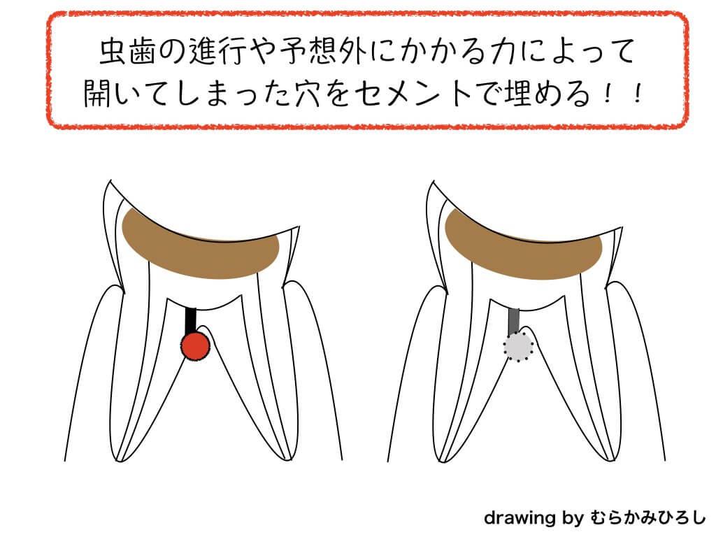 MTAセメントで穴を埋めた歯のイラスト